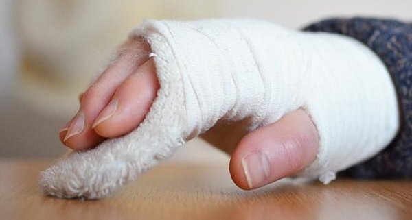How To Remove A Plaster Cast